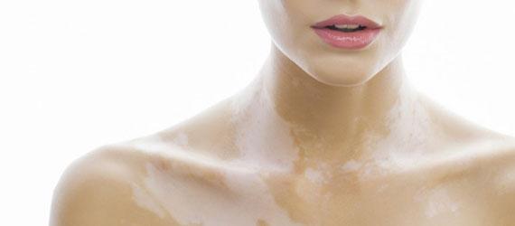 Vitiligo – Weißfleckenkrankheit